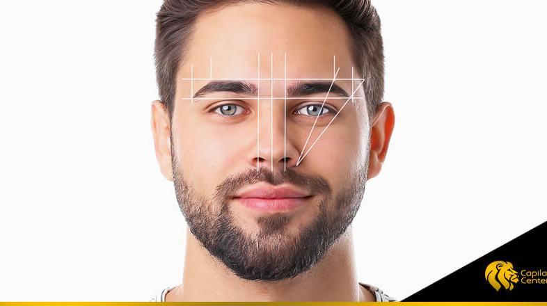 ¿Lifting o implante de cejas? ¡Elige correctamente!