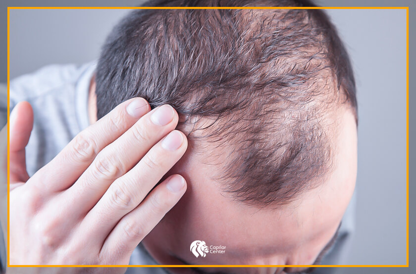 ¿Qué es esta patología del cabello?