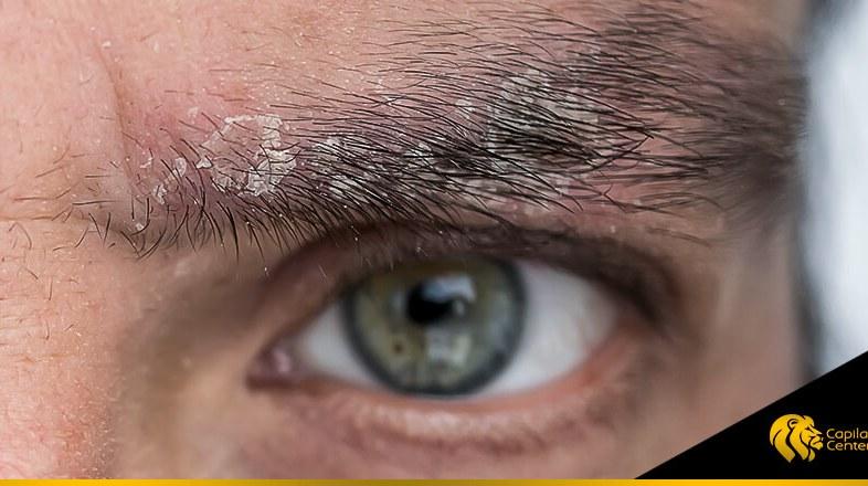 Tener caspa en las cejas no te hace candidato a un Implante de Cejas