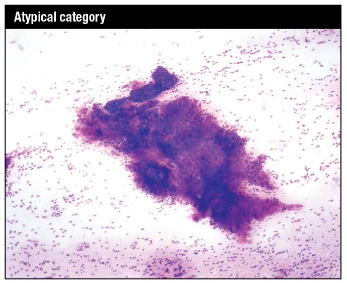 Modified Giemsa stain. Moderately cellular smear showing a large mildly hypercellular stromal fragment containing a branching capillary and with an adjacent tissue fragment of ductal epithelial cells in a background of stripped nuclei, raising the possibility of a low-grade phyllodes tumor.