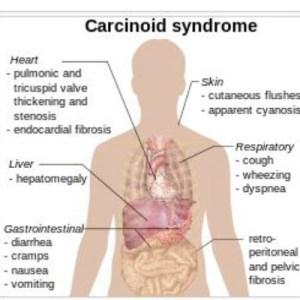 carcinoid-syndrome-presentation-of-symptoms-diagram-wikipedia_2