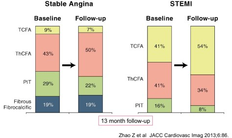 8-coronaropathies-stables-instables
