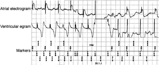 Implantable Cardioverter Defibrillator Therapy in Athletes