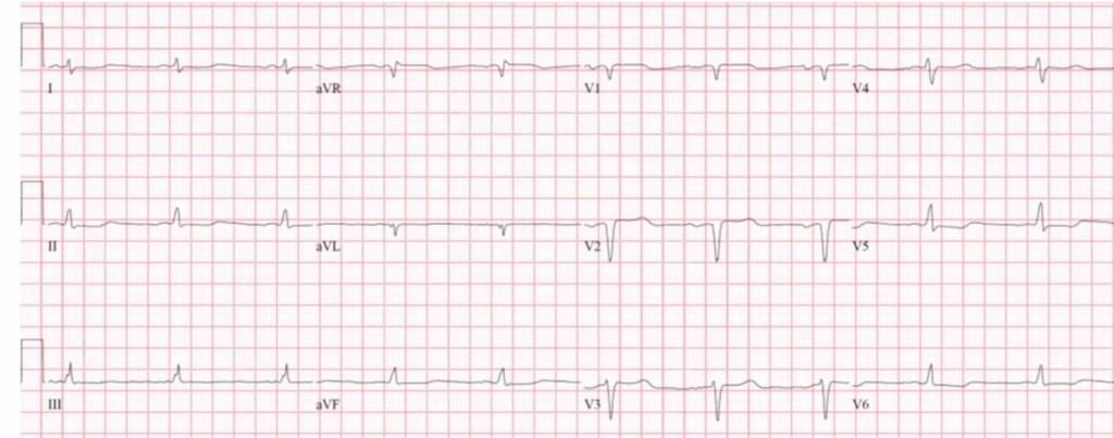 Low Voltage ECG in Cardiac Amyloid