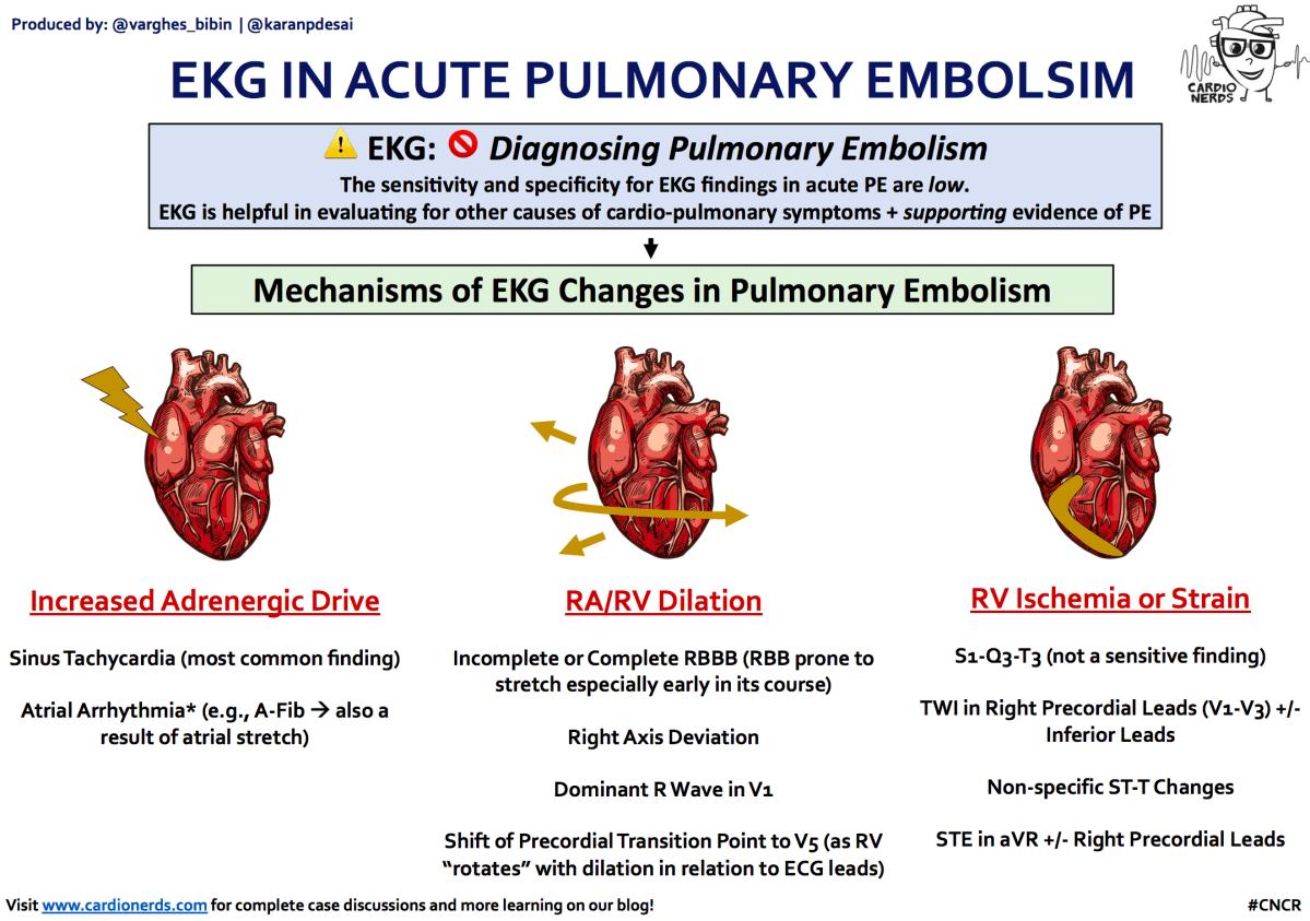 ECG in Acute Pulmonary Embolism