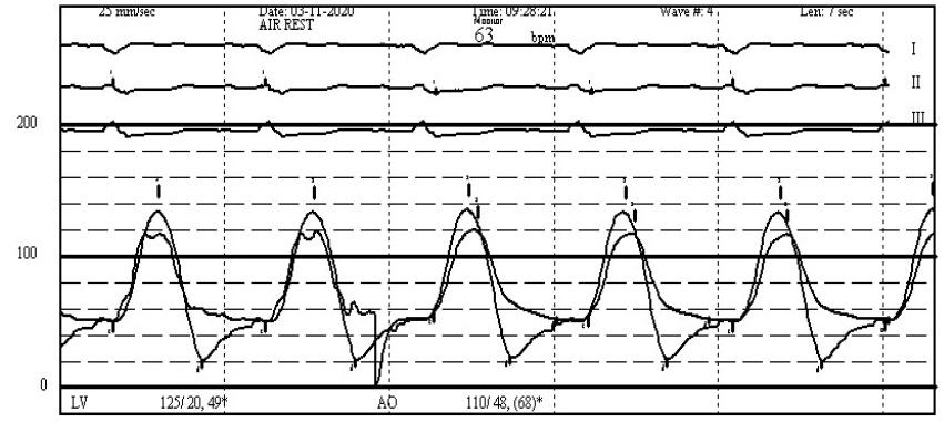 Prosthetic Valve Endocarditis with Aortic Regurgitation