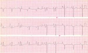 CardioNerds ECG Challenge #5
