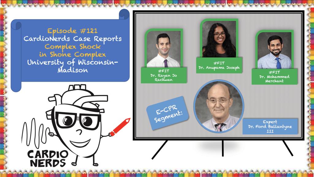 121. Case Report: Complex Shock in Shone Complex - University of Wisconsin-Madison