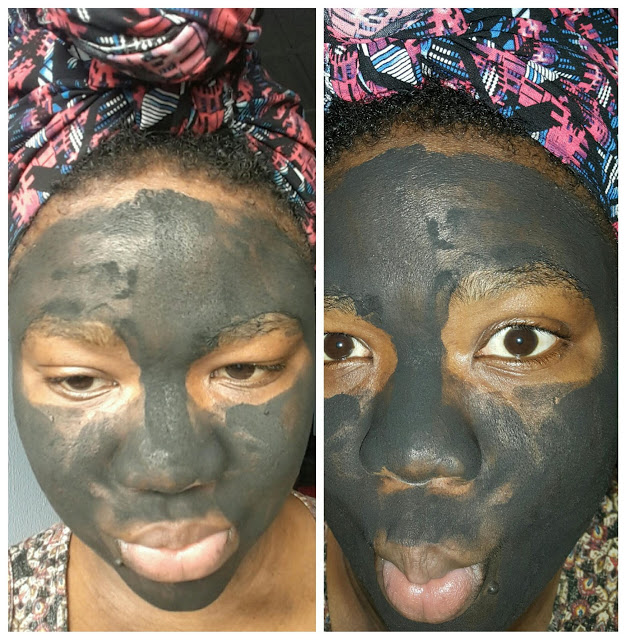 Activated charcoal for acne treatment