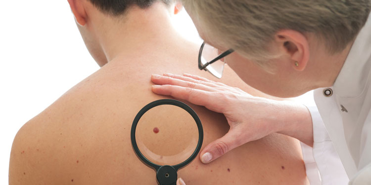 What to look out for – skin cancer signs and symptoms
