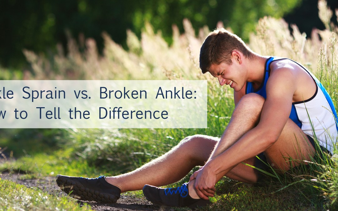 Ankle Sprain vs. Broken Ankle: How to Tell the Difference