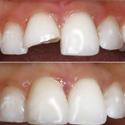 repaired tooth using bonding