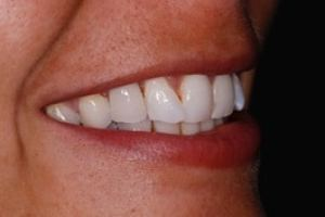 Dental Bonding, denture changed to a bridge after