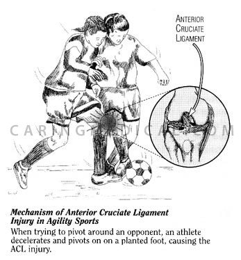 ACL.injury