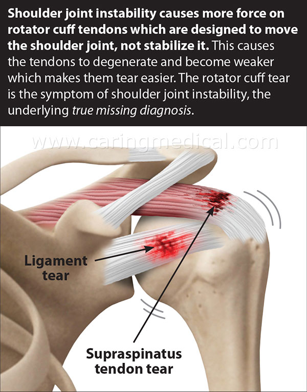 Prolotherapy PRP and Stem Cell shoulder pain treatments ...