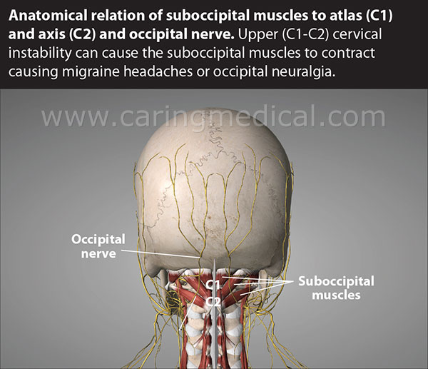 Brain Diagram Together With Occipital Nerve Block Anatomy On Diagram
