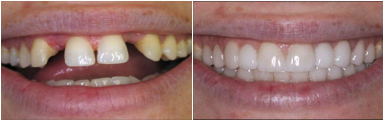Dental Bridges Before and After Pictures in Kinston NC