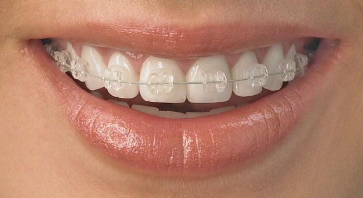 mouth_copy_0-1