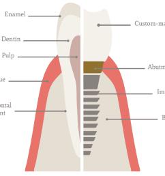 implant diagram [ 1136 x 882 Pixel ]