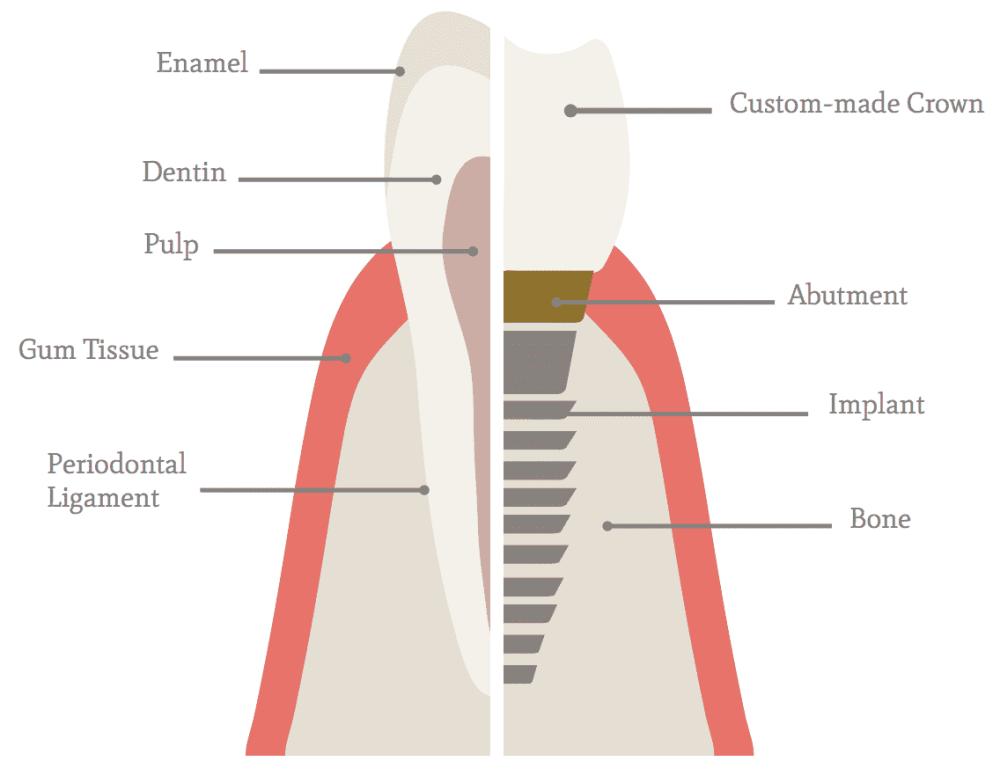 medium resolution of implant diagram