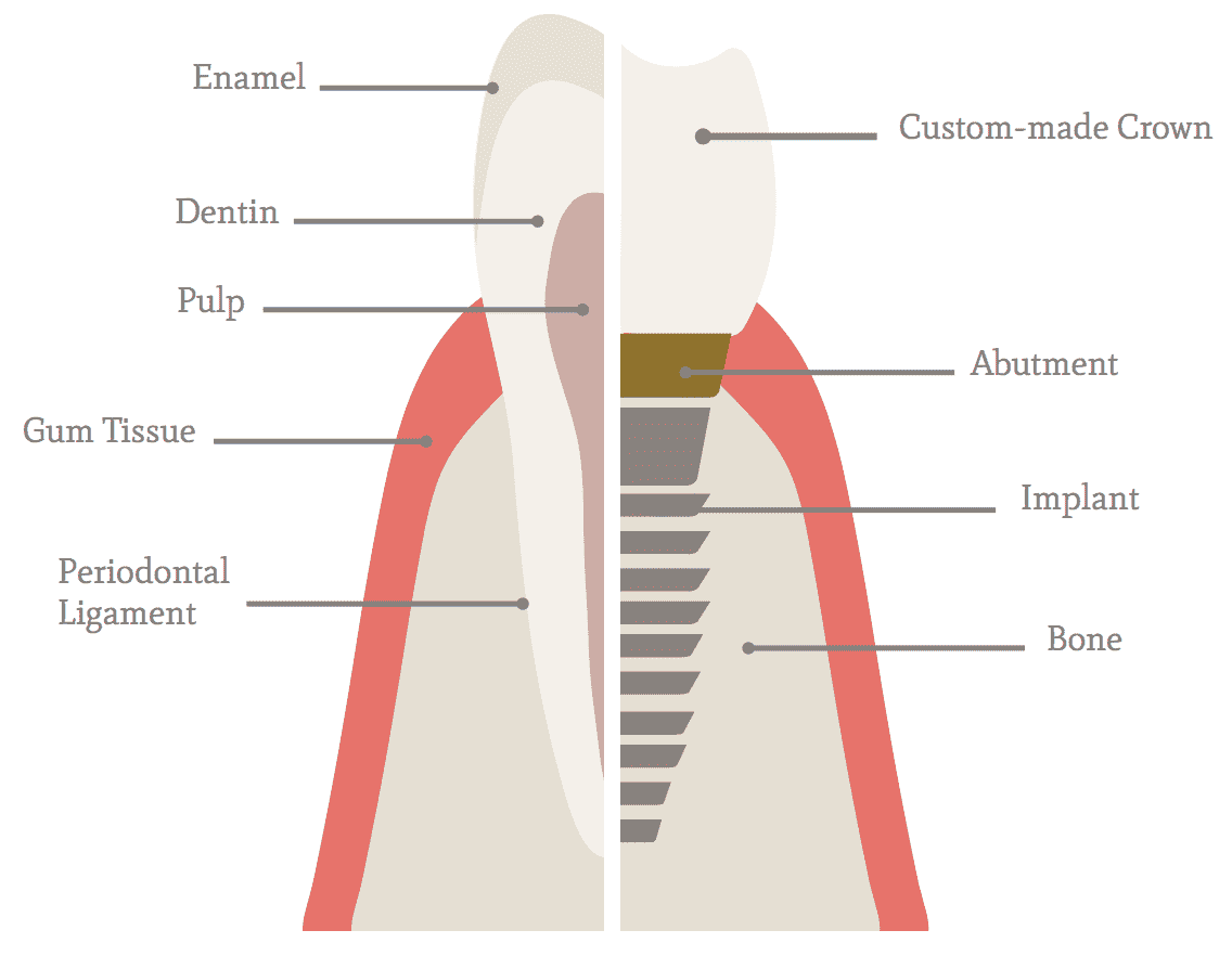 hight resolution of implant diagram