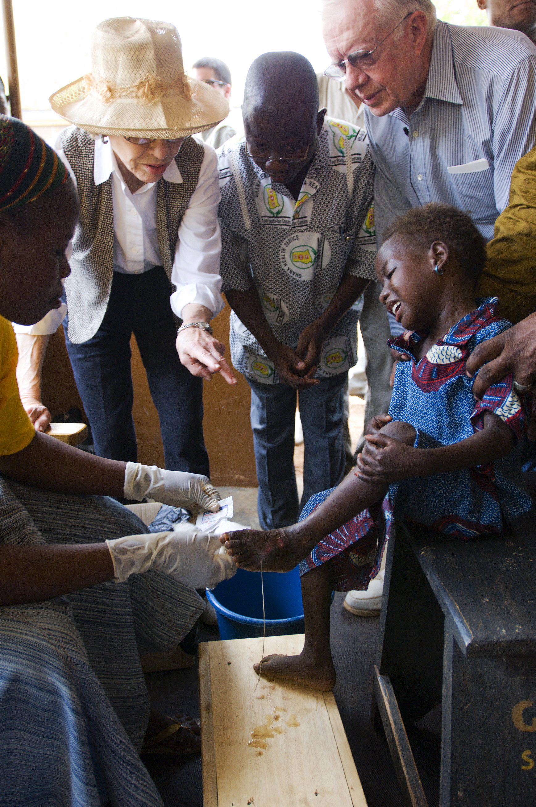 Jimmy Carter Images  Jimmy Carter Photos  Guinea Worm