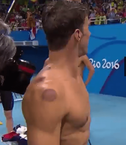 Michael Phelps cupping therapy