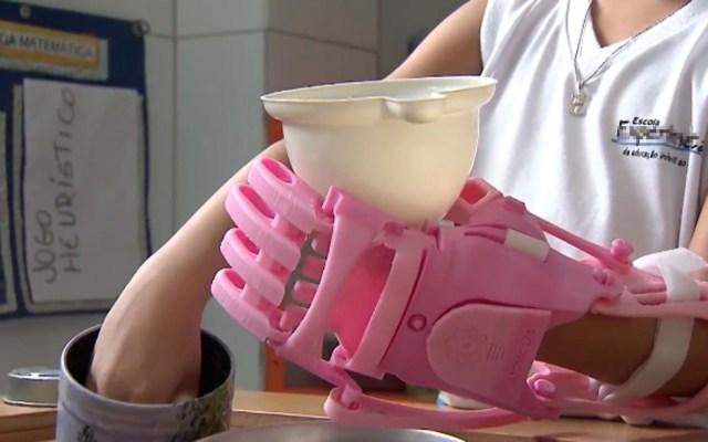 Garotinha está aprendendo a manusear as coisas com a mão bionônica (Foto: Reprodução/TV Bahia )