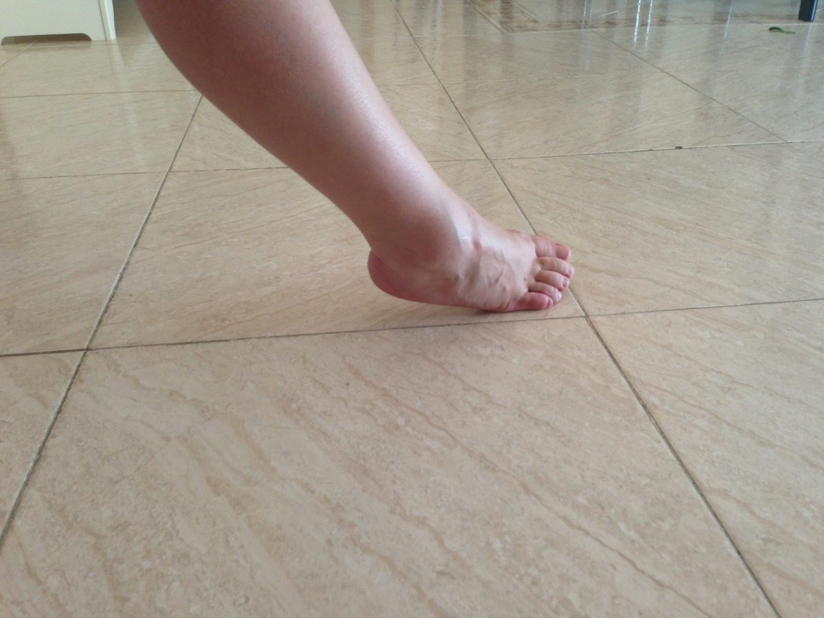 fractura del bailarín 3