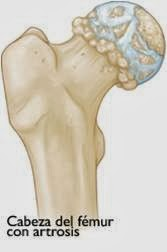 prótesis de Cadera - imagen 2