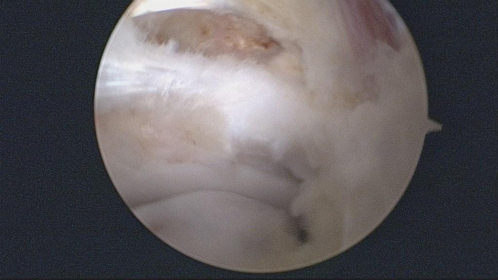 Problemas de tobillo en los bailarines   - Os trígonum retirado