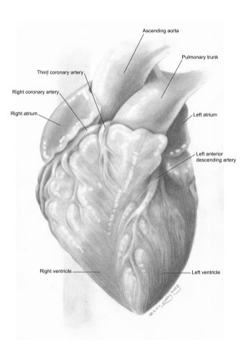 Illustration of a Third Coronary Artery anatomical variation. Graphite and Photoshop.