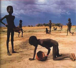 Image result for Malnutrition in mali