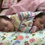 Mother Gives Birth to Healthy Conjoined Twins After Refusing Abortion