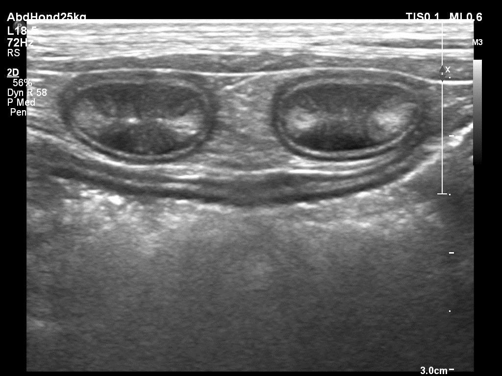 2 darmlussen in dwarsdoorsnede met verhoogde echogeniciteit van de mucosa (slijmlaag) wijzend op inflammatory bowel disease