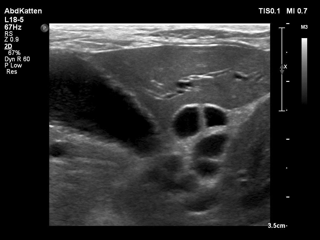 Dilatatie galgangen bij een kat met cholangiohepatitis