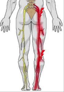 Could You be Suffering from Sciatica?  Cawley Physical