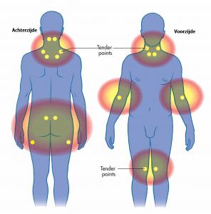 Fibromyalgie pijnpunten
