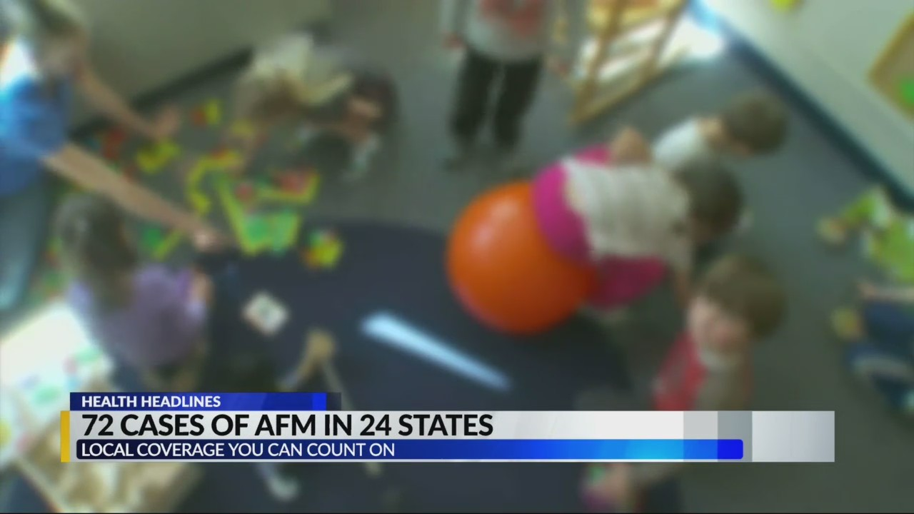 72 cases of AFM in 24 states