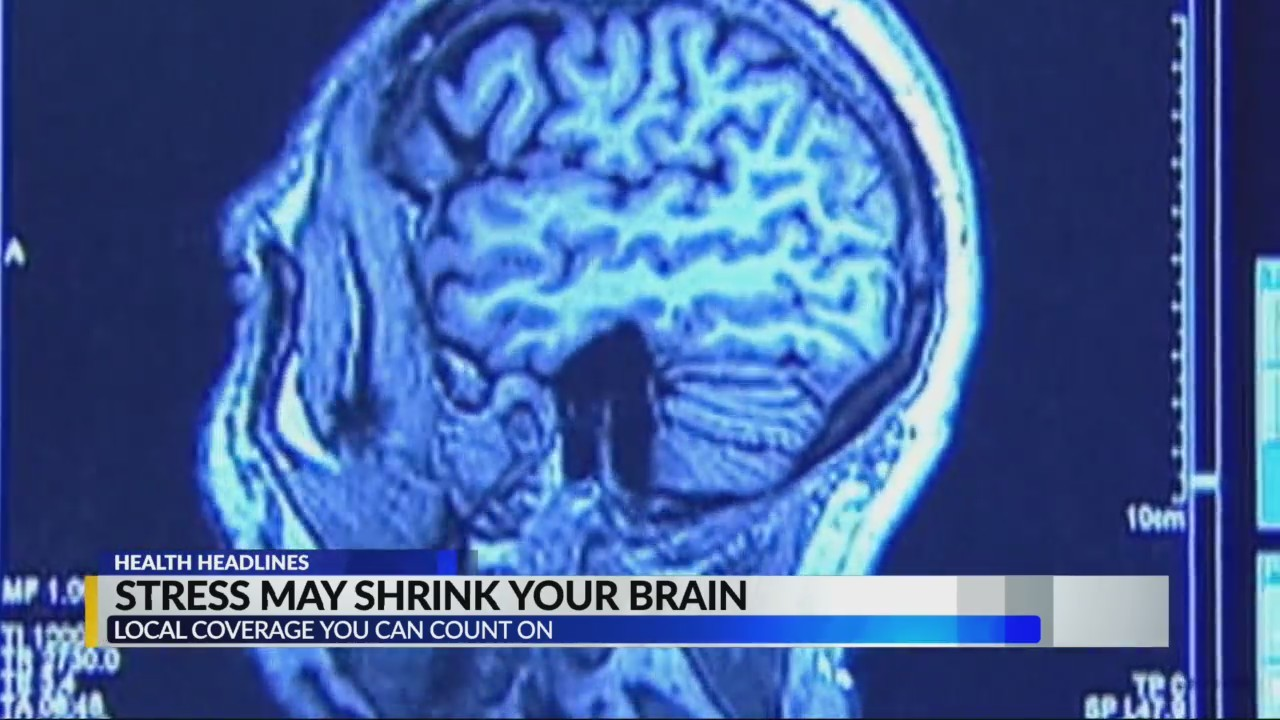 Stress may shrink your brain