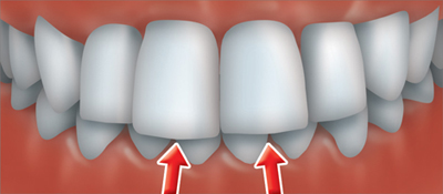 A deep bite occurs when the upper front teeth cover the lower front teeth too much.