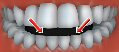 An open bite occurs when the back teeth are together and there is an opening<br /> between the lower and upper front teeth