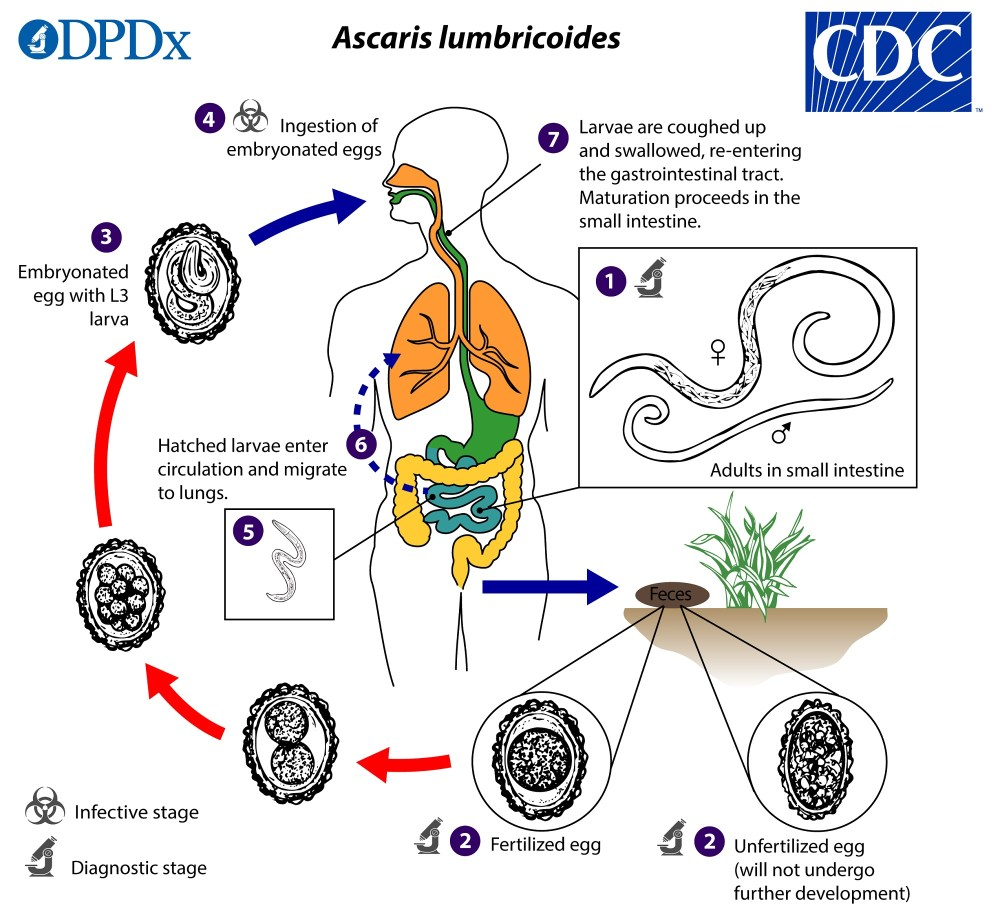 medium resolution of life cycle of ascariasis