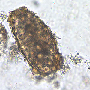 telur ascaris lumbricoides infertil kortikasi