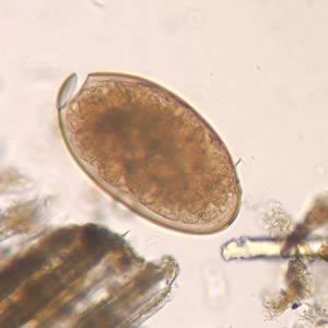 Telur Fasciola hepatica