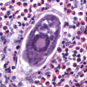 Eggs of S. haematobium in a urinary bladder biopsy specimen, stained with H&E. Images courtesy of the Michael E. DeBakey V. A. Medical Center, Houston, TX.