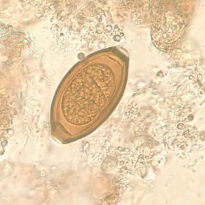 71 Gambar Telur Cacing Nematoda Usus Terlihat Keren