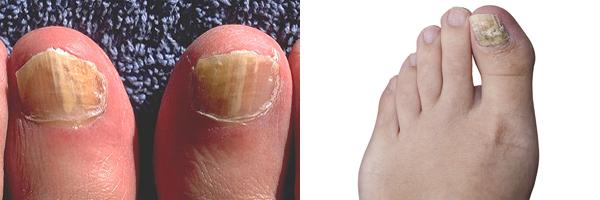 Photos of fungal infected toenails.