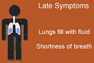 Signs & Symptoms | Hantavirus | DHCPP | CDC