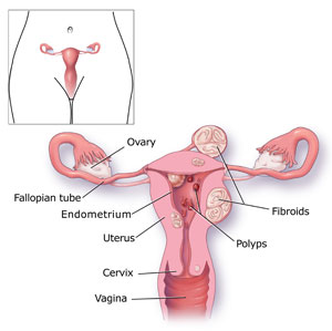 How to Diagnosis heavy Menstrual Bleeding